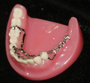 Ưu và nhược điểm của hàm răng giả tháo lắp