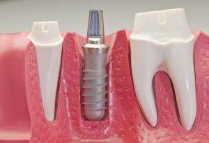 Bảo dưỡng Implant sau khi cấy ghép