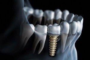 Các kỹ thuật cấy ghép Implant