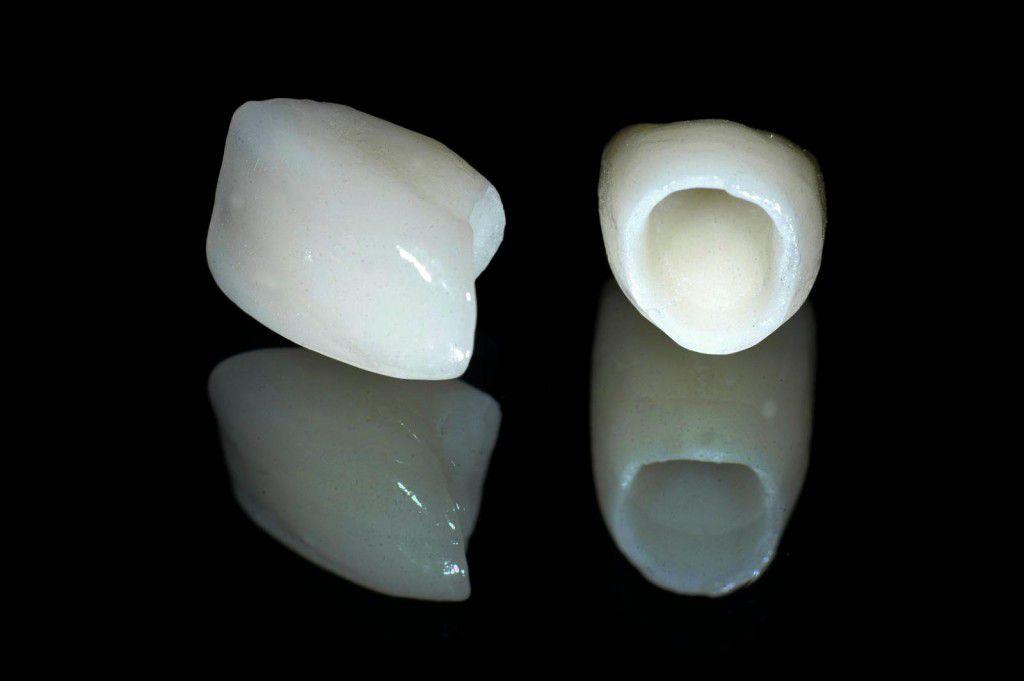Các loại mão răng sứ