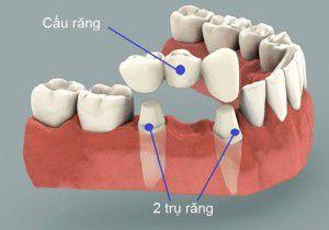 Quy trình làm cầu răng như thế nào ?