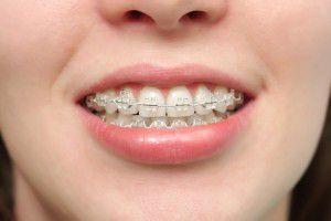 Nên chọn mắc cài loại nào khi niềng răng?
