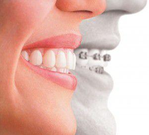 Niềng răng hàm trên và hàm dưới có khác nhau không?