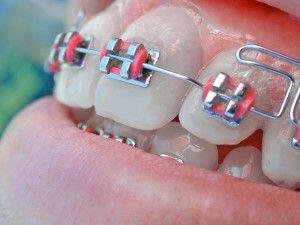 Sử dụng mini vít rút ngắn thời gian niềng răng