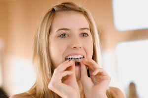 Ưu điểm của niềng răng Invisalign