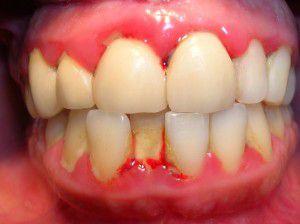 Nguyên nhân làm sưng chân răng