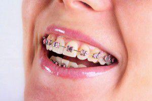 Niềng răng nhanh nhất thời gian bao lâu ?