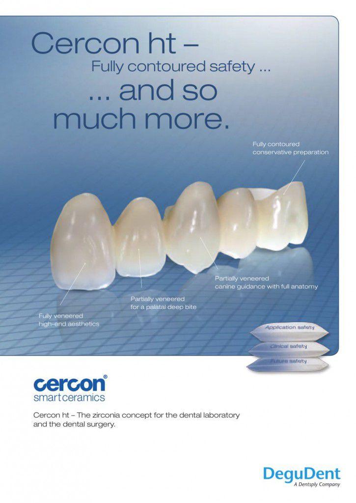 Răng sứ cercon ht là gì? 1