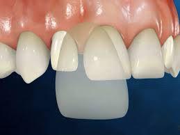 Răng sứ veneer là gì ?