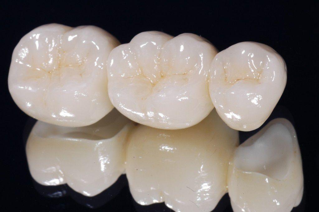Răng sứ venus bảo tồn được bao lâu? 2