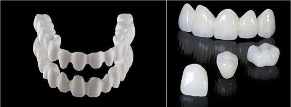 Độ bền của răng sứ Venus 1