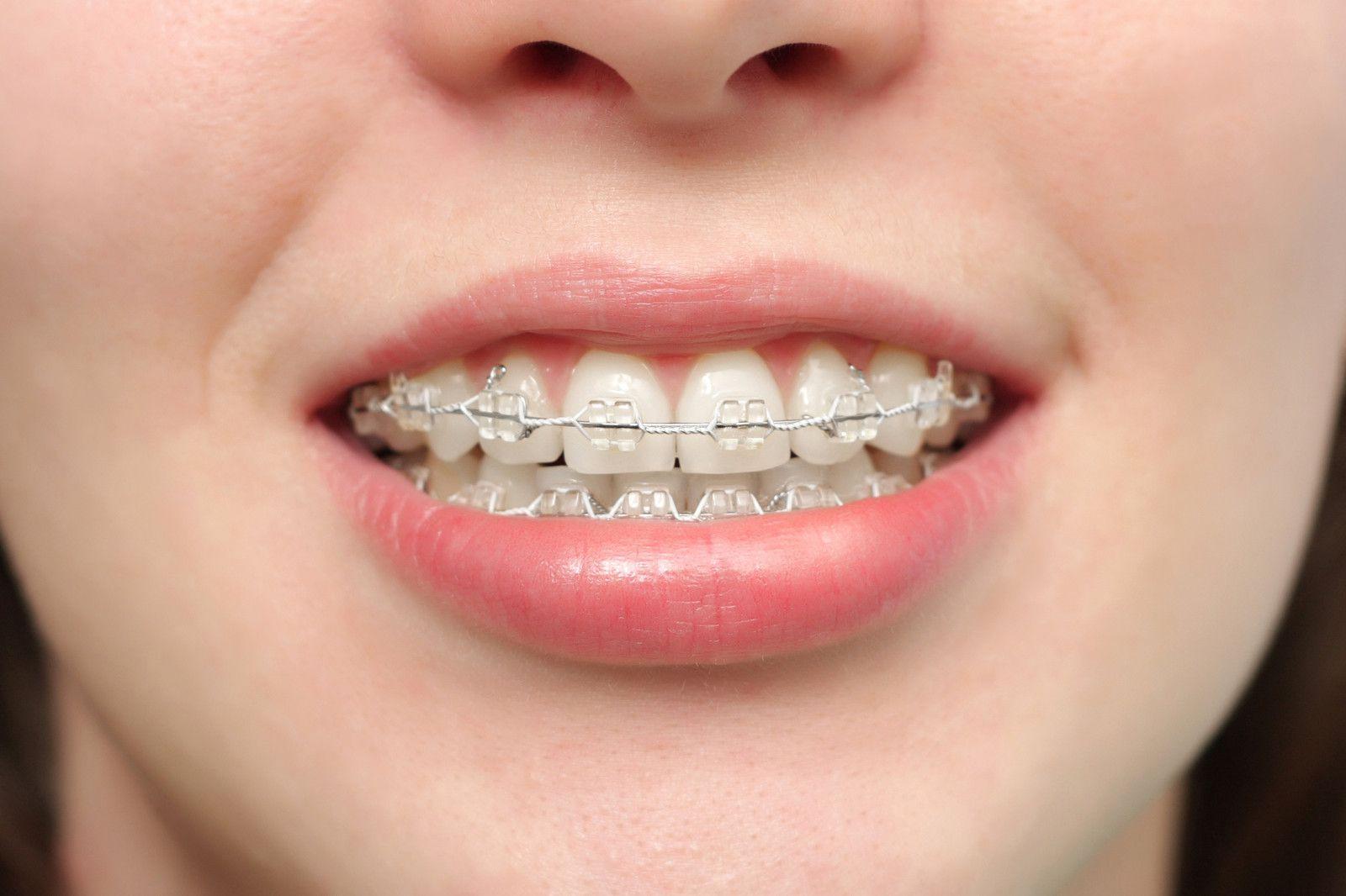 Người trưởng thành niềng răng nên có sự thăm khám cẩn thận và lựa chọn cơ sở uy tín.