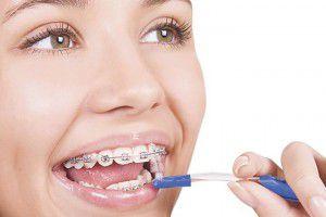 Làm gì để niềng răng an toàn?
