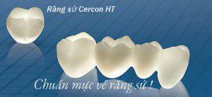 Răng sứ Cercon HT có thay thế được răng thật?