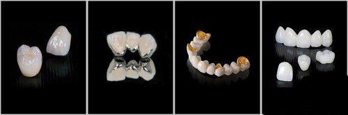 Răng sứ Cercon HT có thay thế được răng thật? 3