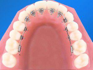 Ưu nhược điểm của niềng răng mặt trong