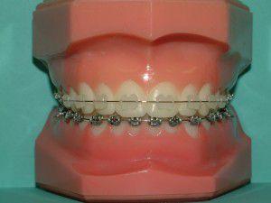 Ưu và nhược điểm của niềng răng mắc cài sứ