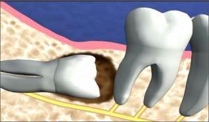 Tác hại của răng khôn mọc lệch và mọc ngầm