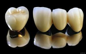 Bọc răng sứ titan tạo tính thẩm mỹ