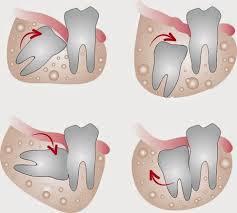 Có nên nhổ răng khôn mọc lệch không ?