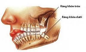 Nhổ răng khôn mọc lệch có ảnh hưởng sức khỏe ?