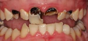 Phục hồi răng bị sâu và vỡ