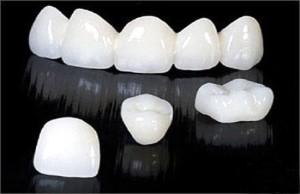 Răng sứ Cercon có giá bao nhiêu ?