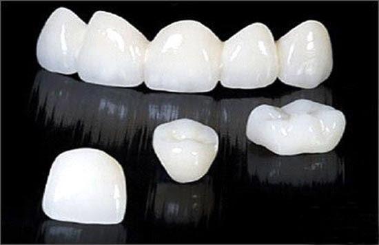 Răng sứ Cercon có giá bao nhiêu? 1