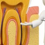 Điều trị tủy răng bằng máy vi phẫu hiện đại