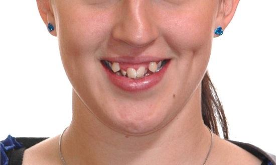 Kết quả hình ảnh cho răng lệch lạc
