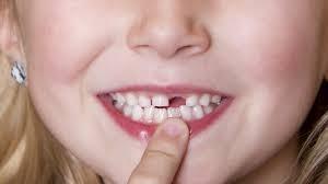 Phòng tránh sâu răng cho trẻ em