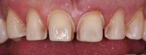 Quy trình thực hiện mặt dán răng sứ veneer