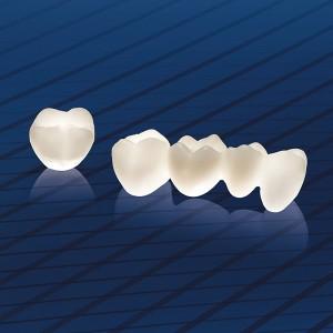 Vì sao dùng răng sứ ?