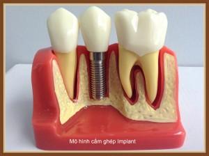 Lợi ích của việc trồng răng Implant