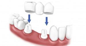 Sự khác nhau giữa cấy ghép implant và bọc răng sứ