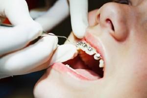 Niềng răng cố định giá bao nhiêu ?