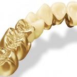 Chi phí thay răng sứ kim loại quý