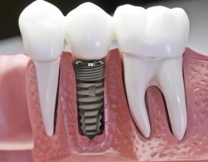 Kỹ thuật trồng răng Implant
