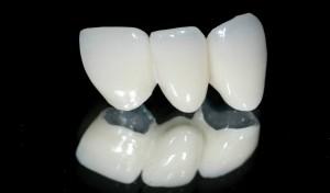 Những thắc mắc khi trồng răng sứ