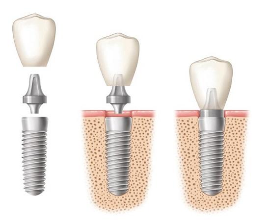 Răng implant có đau nhức khi trời lạnh? 1