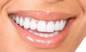 Thế nào là một hàm răng đẹp?
