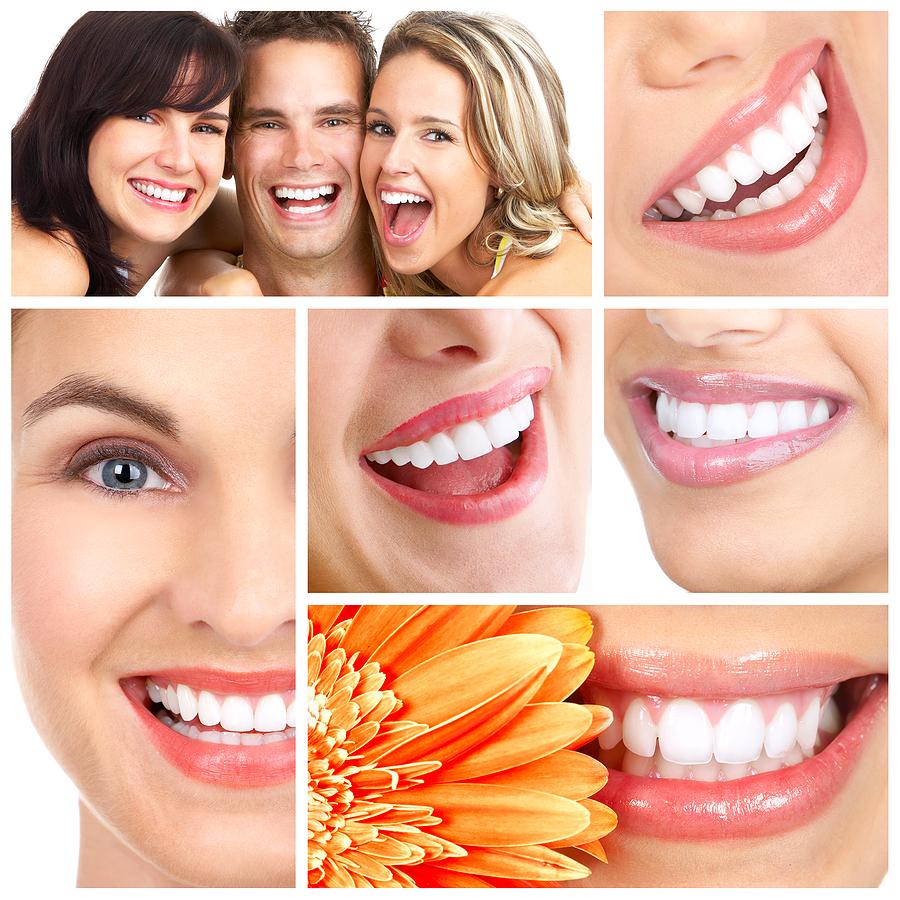 Các bước làm sạch răng Implant đúng cách 4