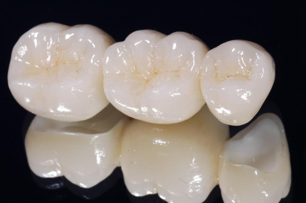 Phục hồi răng bị sâu và vỡ như thế nào ?