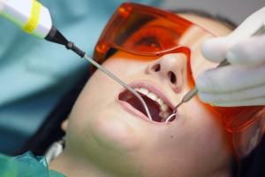 Lựa chọn thuốc tẩy trắng răng như thế nào ?
