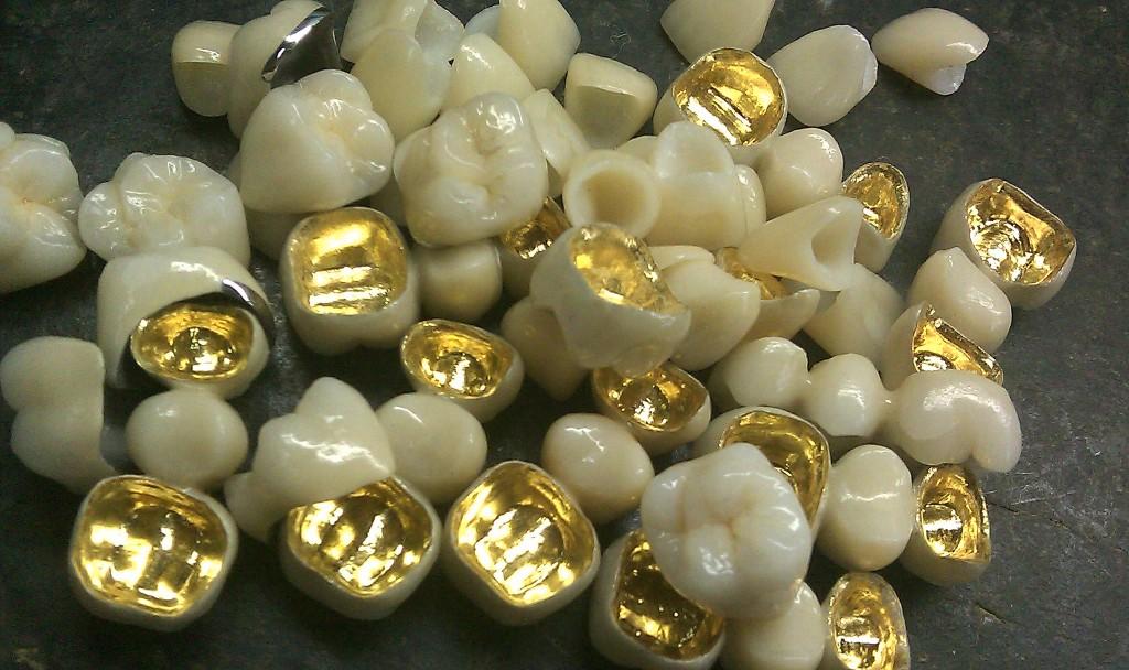 Cấu tạo của răng sứ kim loại quý 1