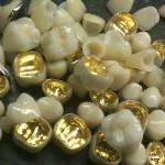 Cấu tạo của răng sứ kim loại quý