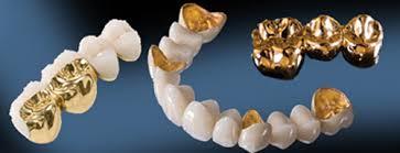 Cấu tạo của răng sứ kim loại quý 2