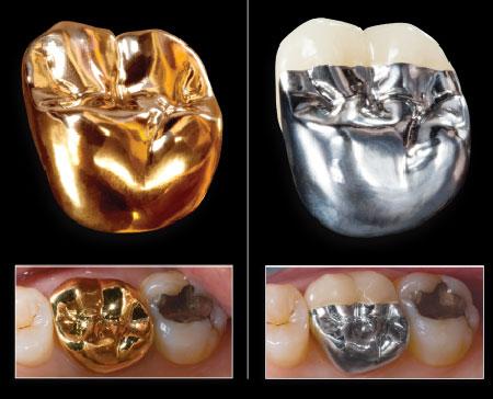 Cấu tạo của răng sứ kim loại quý 3