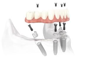 Cấy ghép Implant có xảy ra nguy hiểm gì không ?