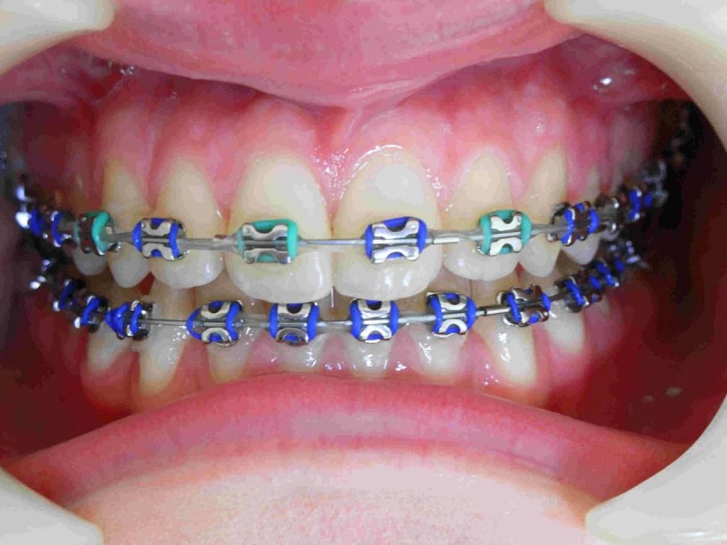 Niềng răng mắc cài inox là gì? 3